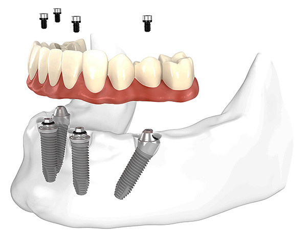 L'image montre schématiquement les prothèses des dents selon la méthode All-on-4 (sur quatre implants).